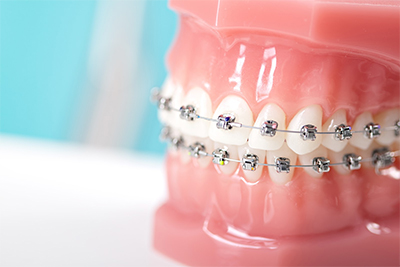 Orthodontics in Pearland