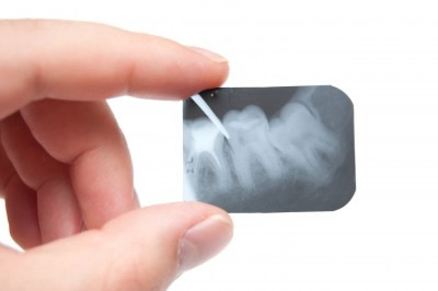 Pearland Endodontics - root canal